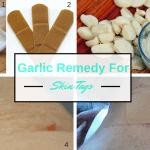 DIY Garlic Remedies for Skin Tags