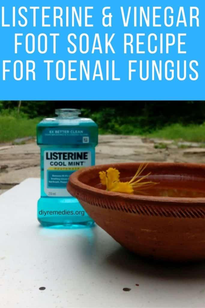 Apple Cider Vinegar For Toenail Fungus