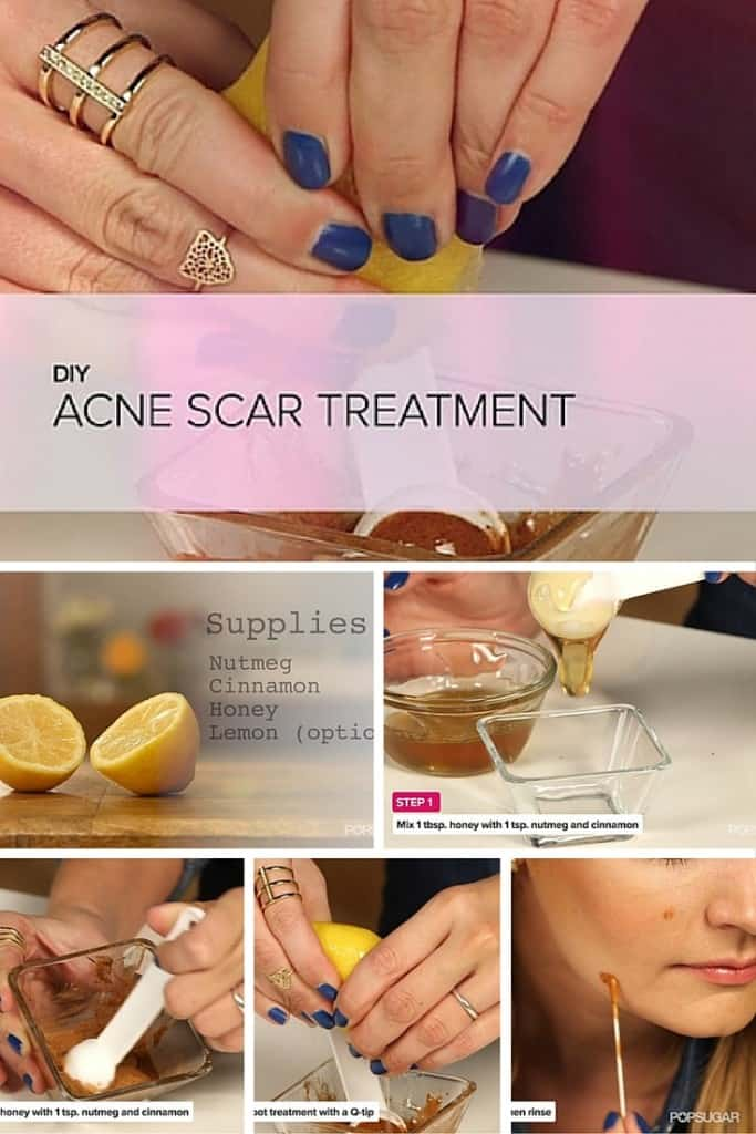 DIY One Step to Lighten Dark Spots and Acne Scars Treatment