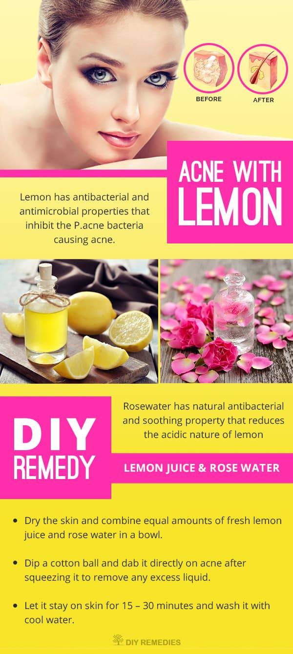 How to Get Rid of Acne with Lemon
