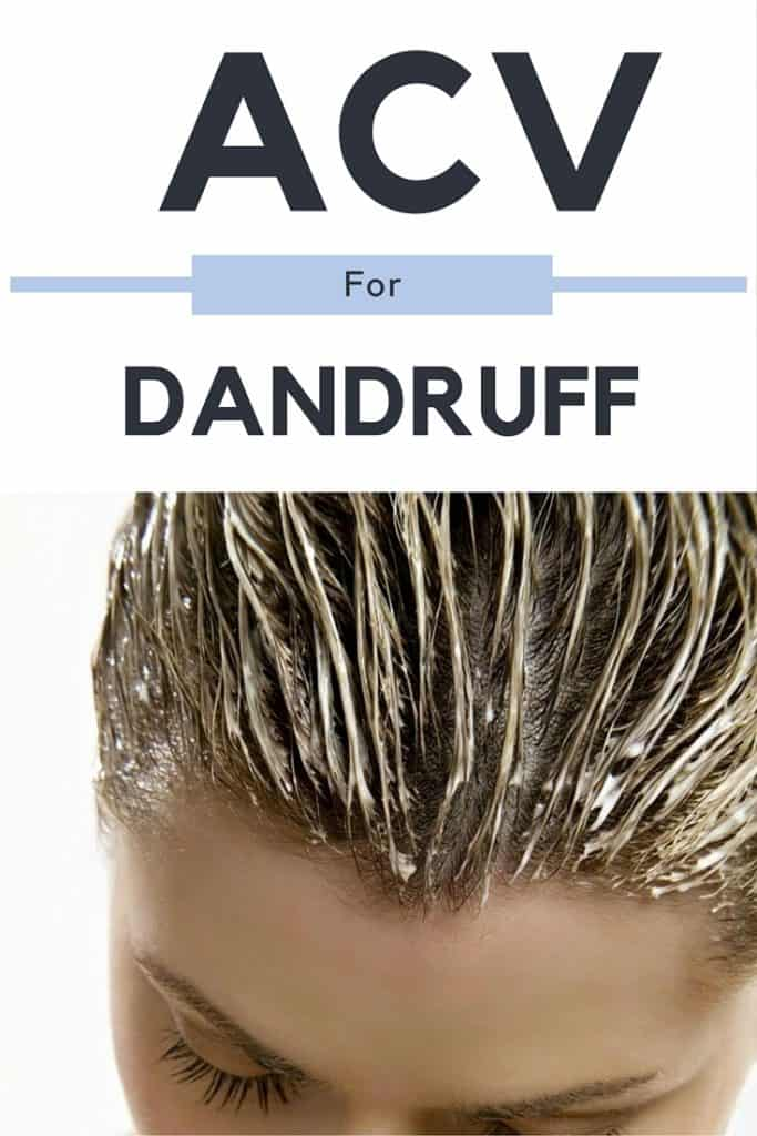 ACV For Dandruff