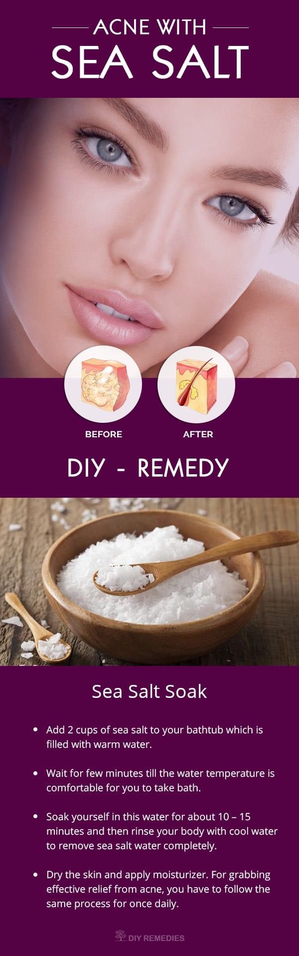 How to Treat Acne with Sea Salt