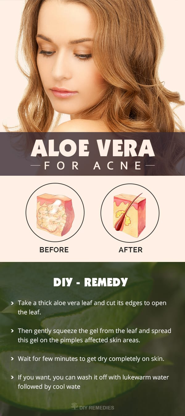Aloe-Vera-for-Acne