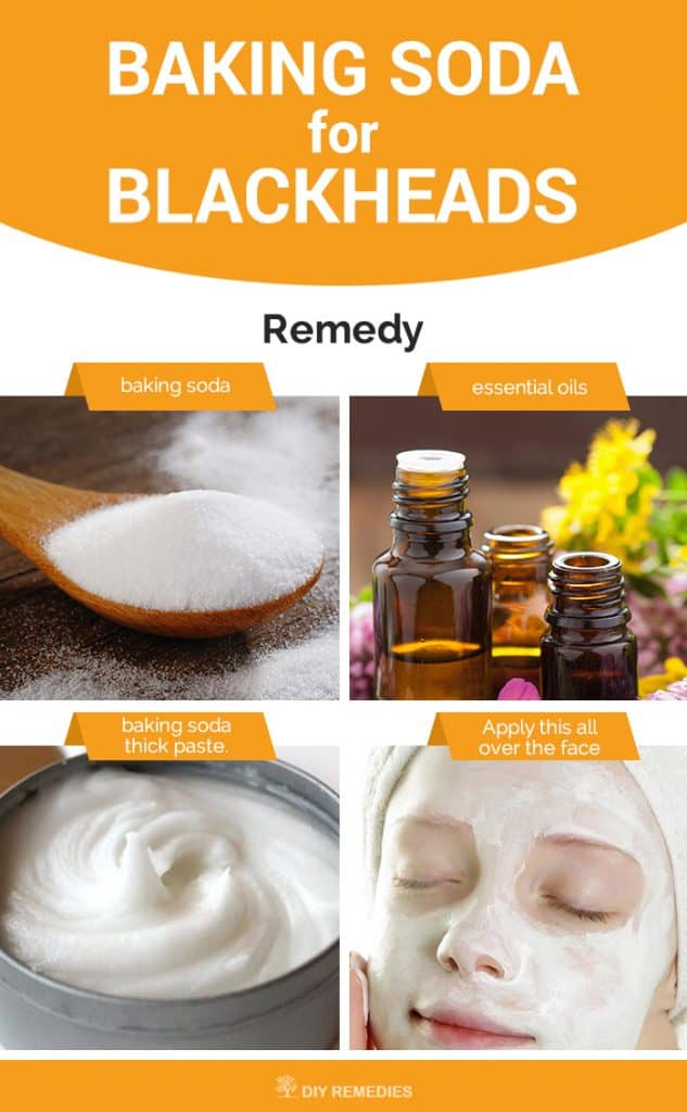 Baking Soda or Blackheads