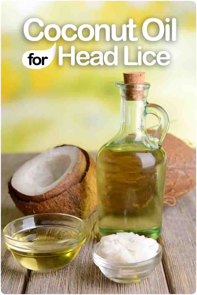 Treating Lice Naturally Coconut Oil