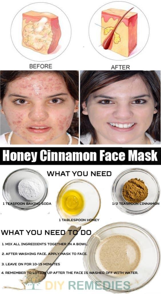 DIY Cystic Acne
