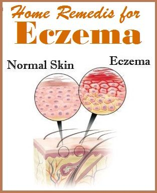 DIY Home Remedies for Eczema