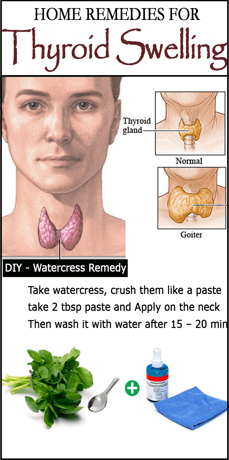 Diy Remedies For Goiter  Thyroid Swelling