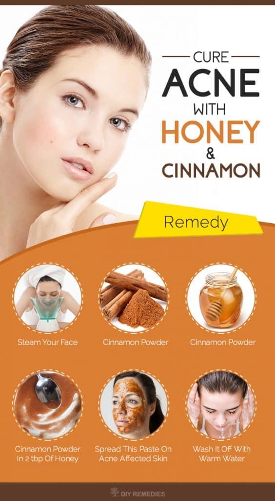 Honey & Cinnamon Paste for ACNE