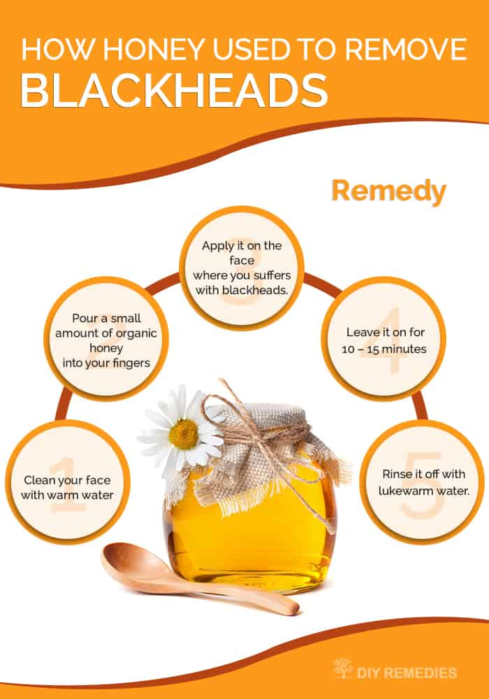 How Honey used to Remove Blackheads