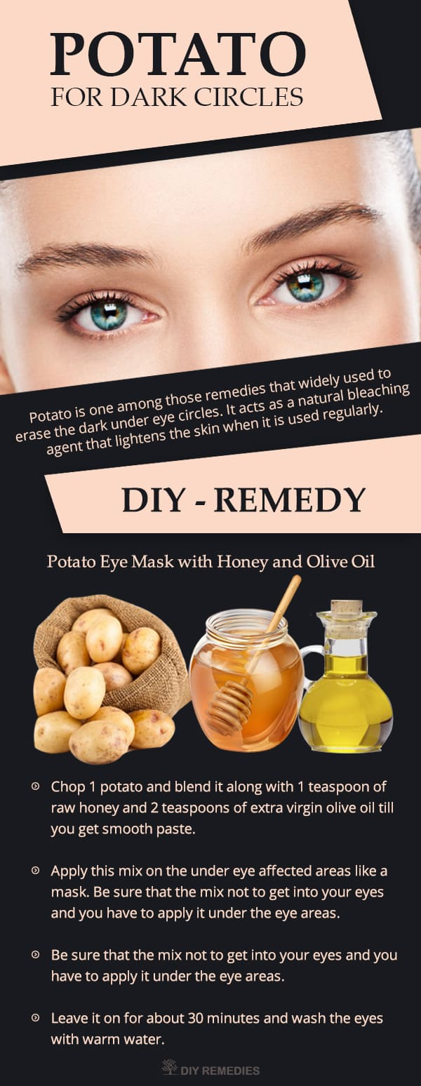 How-Potato-works-for-Reducing-Dark-Circles2