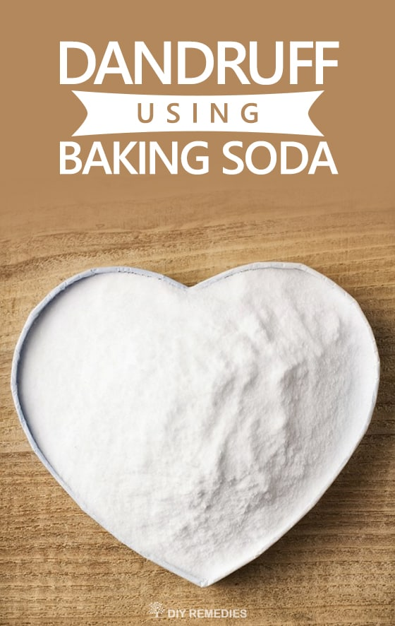 How-to-Get-Rid-of-Dandruff-using-Baking-Soda