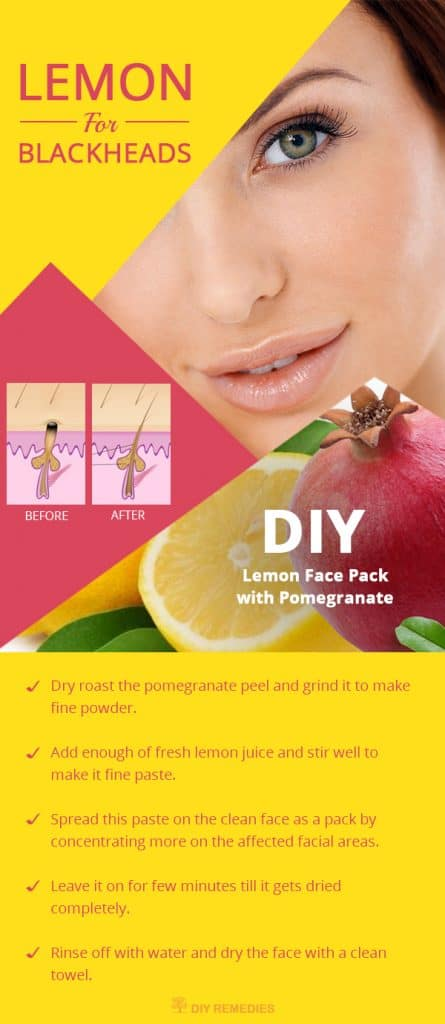 How to use Lemon for Blackheads