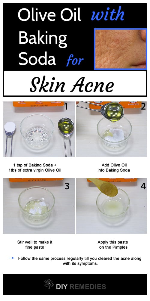Olive Oil with Baking Soda For Pimples Treatment