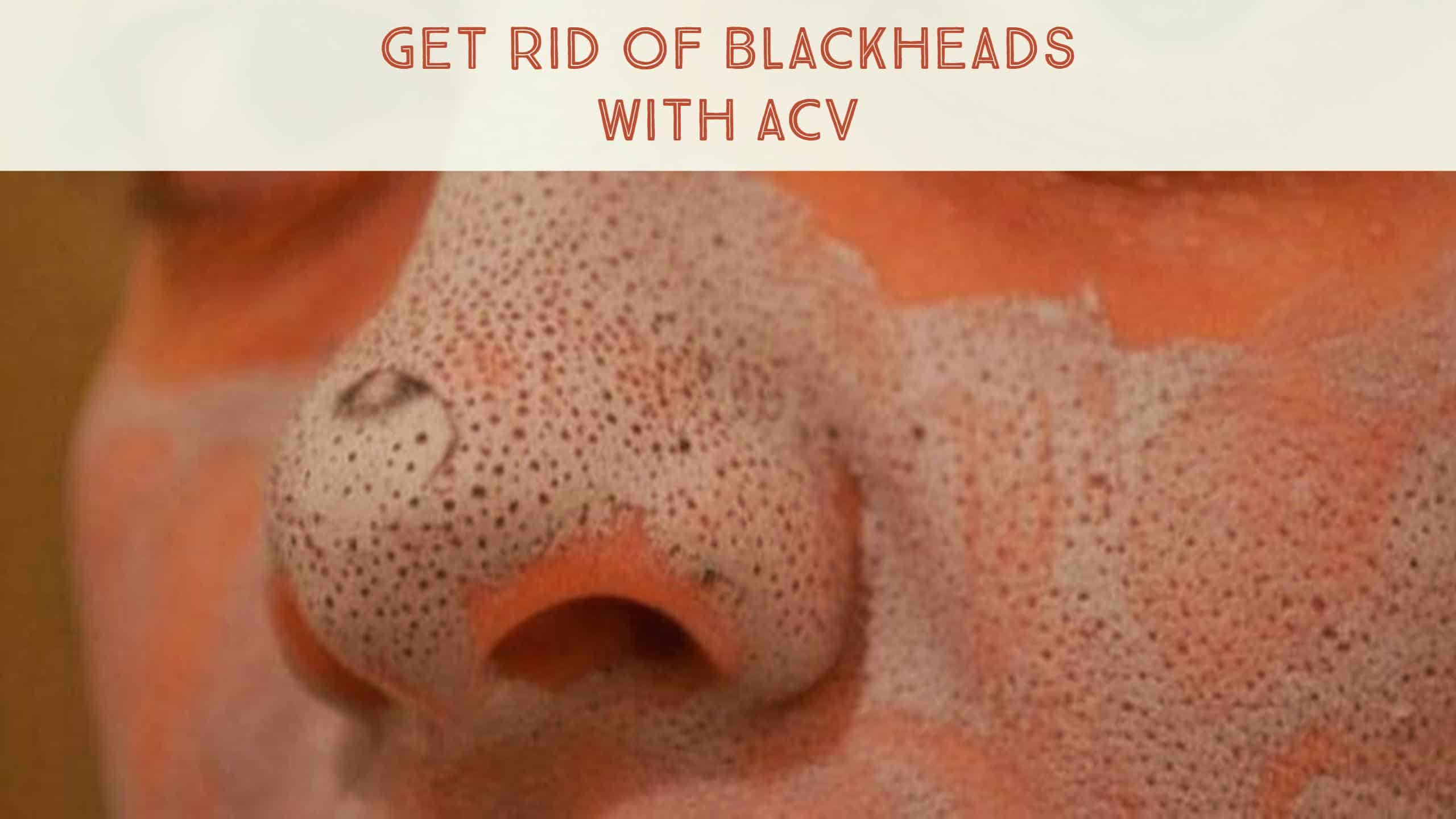 Natural Way To Remove Blackheads And Whiteheads