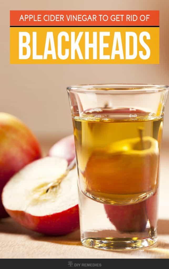 Apple Cider Vinegar to Get Rid of Blackheads