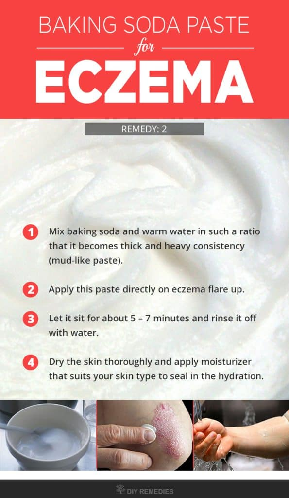 Baking Soda Paste for Eczema