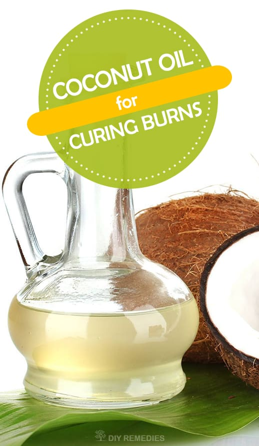 Coconut-Oil-for-Curing-Burns
