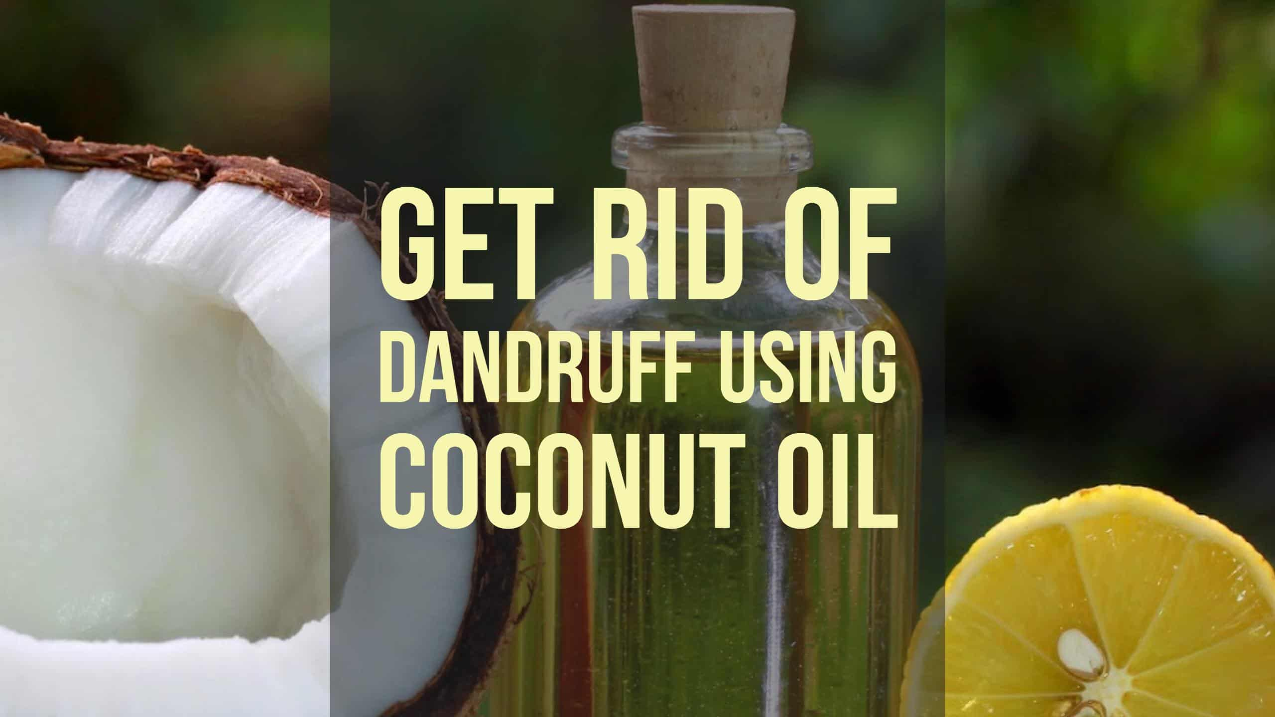 how to get rid of dandruff using coconut oil. Black Bedroom Furniture Sets. Home Design Ideas