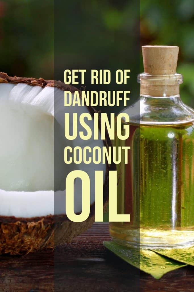 Dandruff using Coconut Oil