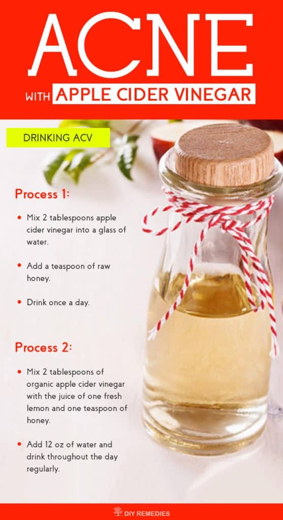 How to Cure Acne with Apple Cider Vinegar