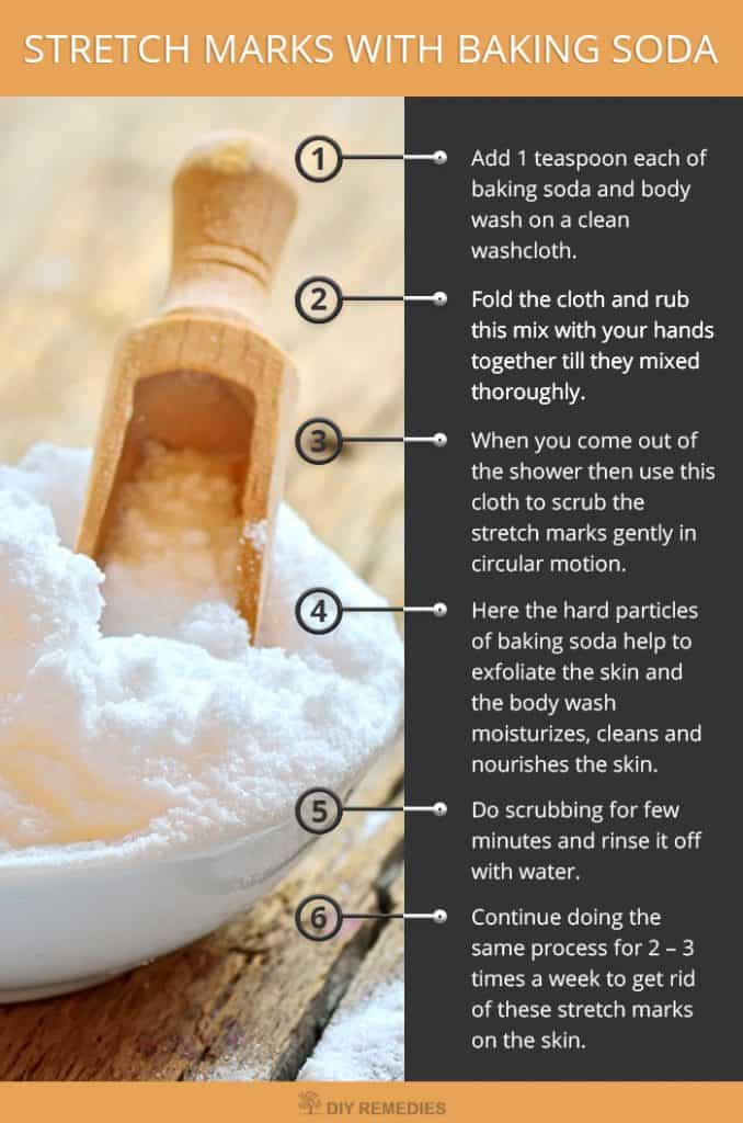 How-to-Get-Rid-of-Stretch-Marks-with-Baking-Soda