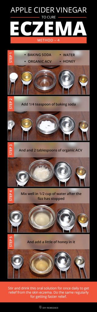 Baking Soda Eczema Drink