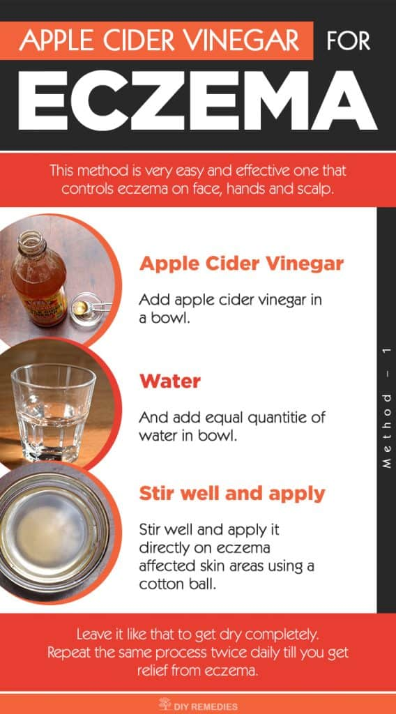 How To Get Rid Of Eczema Using Apple Cider Vinegar