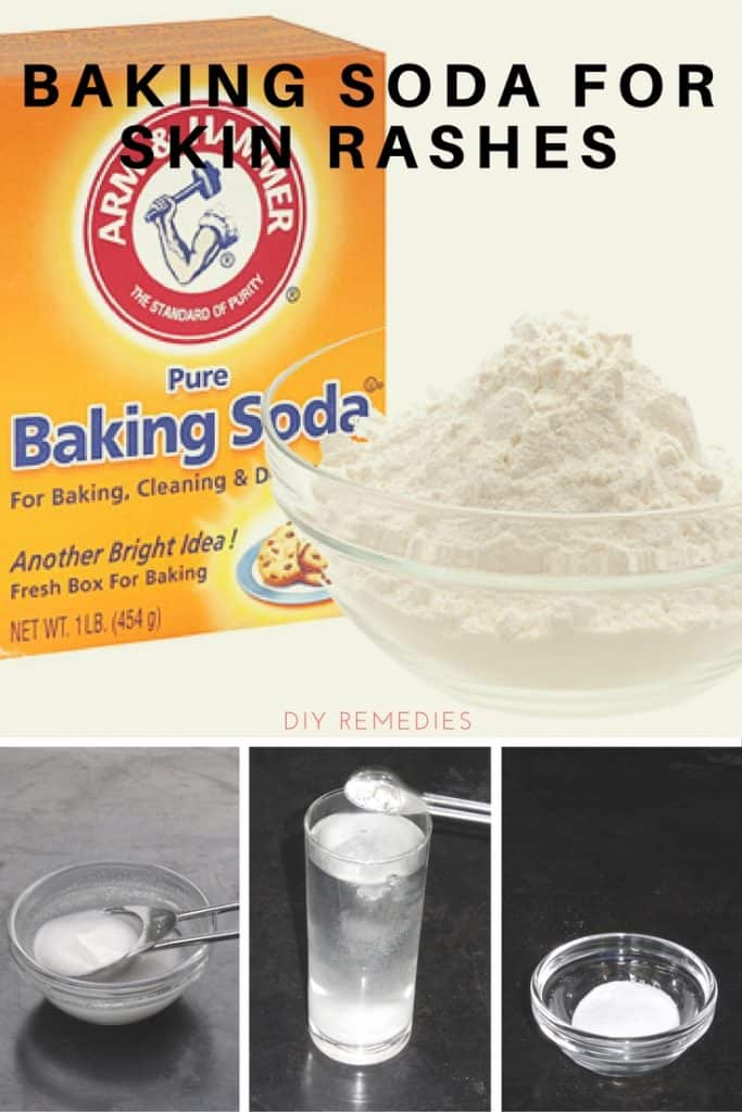 Baking Soda for Rashes