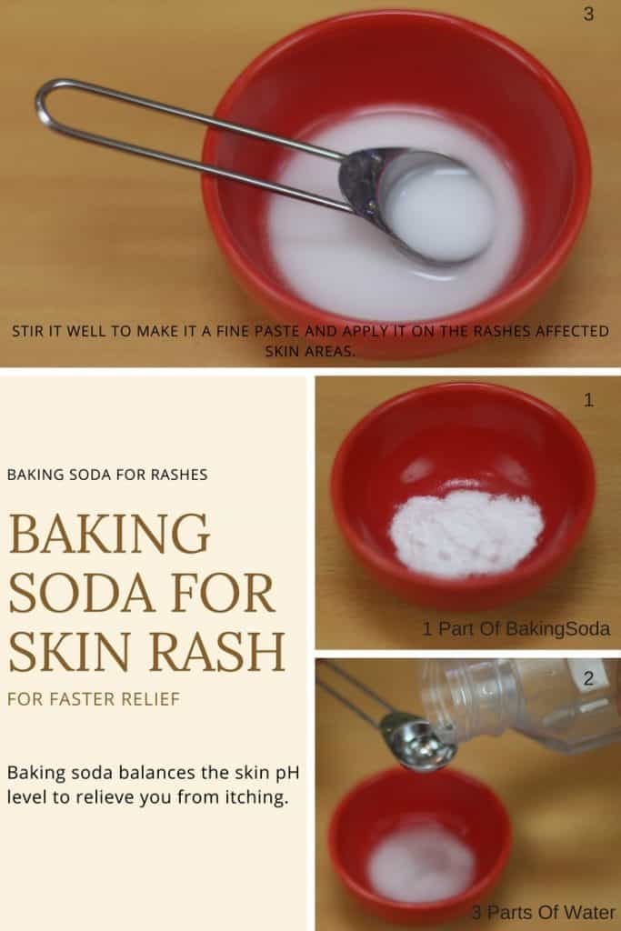 Baking Soda for Skin Rash