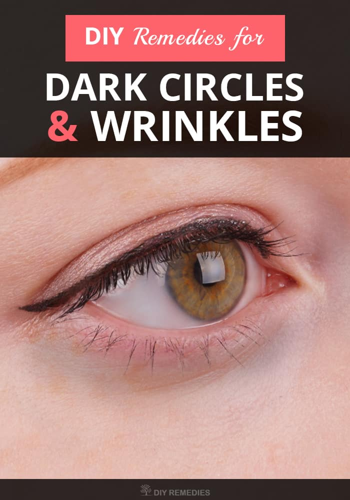 DIY Remedies For Dark Circles And Wrinkles