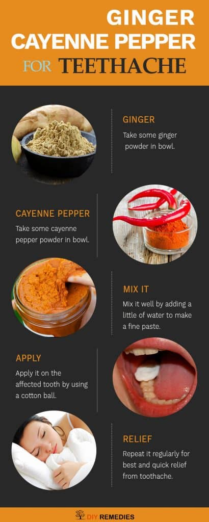 Ginger – Cayenne Pepper Remedies for Toothache