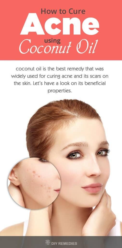 How-to-Cure-Acne-using-Coconut-Oil
