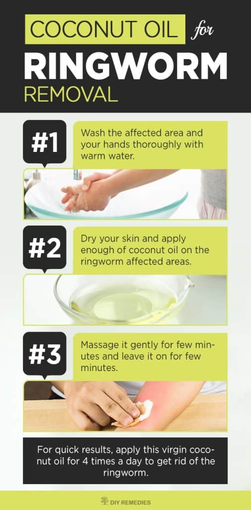 How to use Coconut Oil for Ringworm Removal