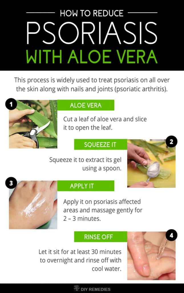 How to Reduce Psoriasis with Aloe Vera