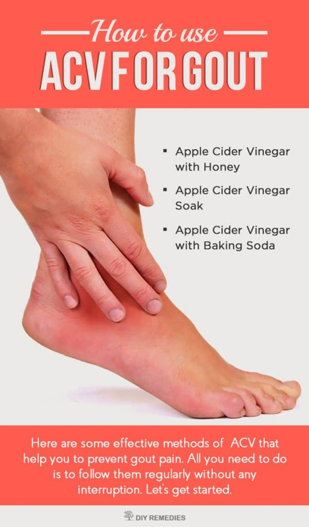 How To Use Apple Cider Vinegar For Gout