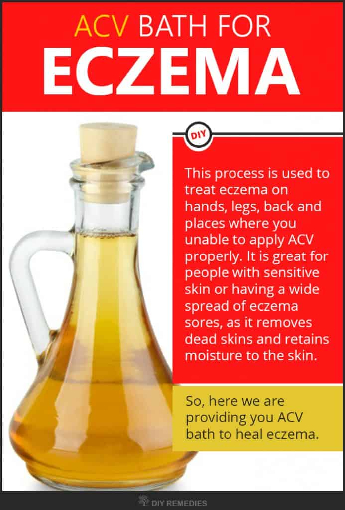 Get Rid of Eczema using Apple Cider Vinegar