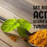 How to Get Rid of Acne Scars using Turmeric