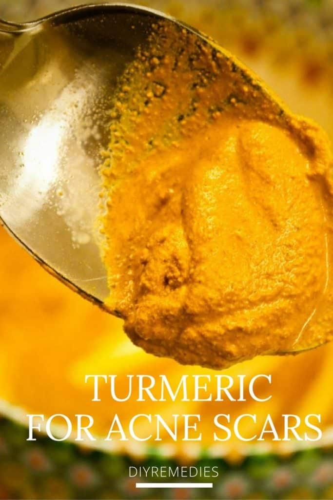 Turmeric for ACNE SCARS