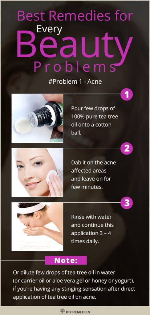 Beauty Problems Acne Best Remedies