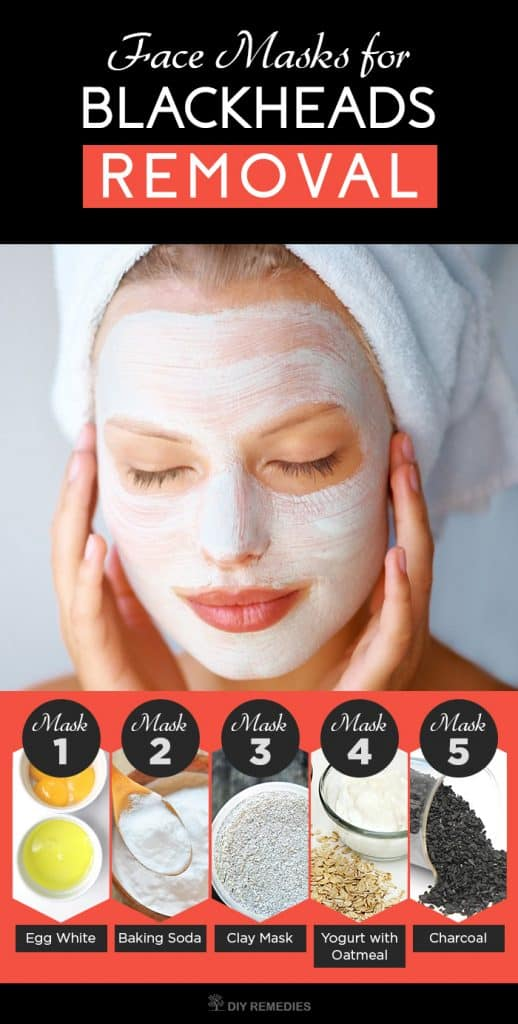 Face Masks for Blackheads Removal