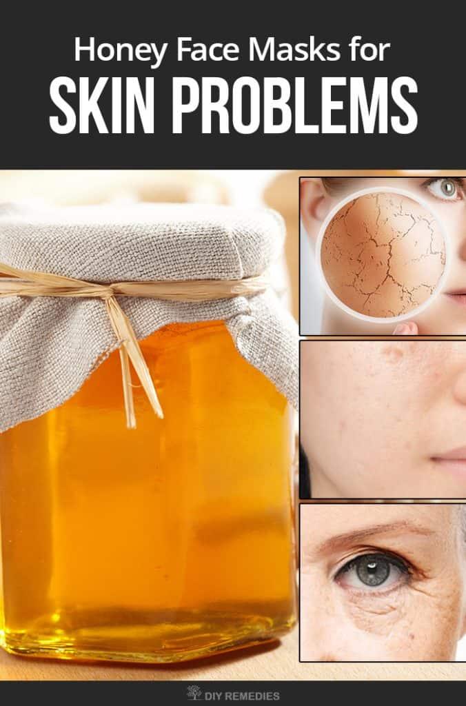 Best Honey Face Masks for Skin Problems