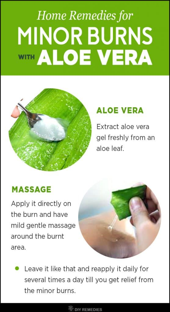 Aloe Vera Remedies for Minor Burns