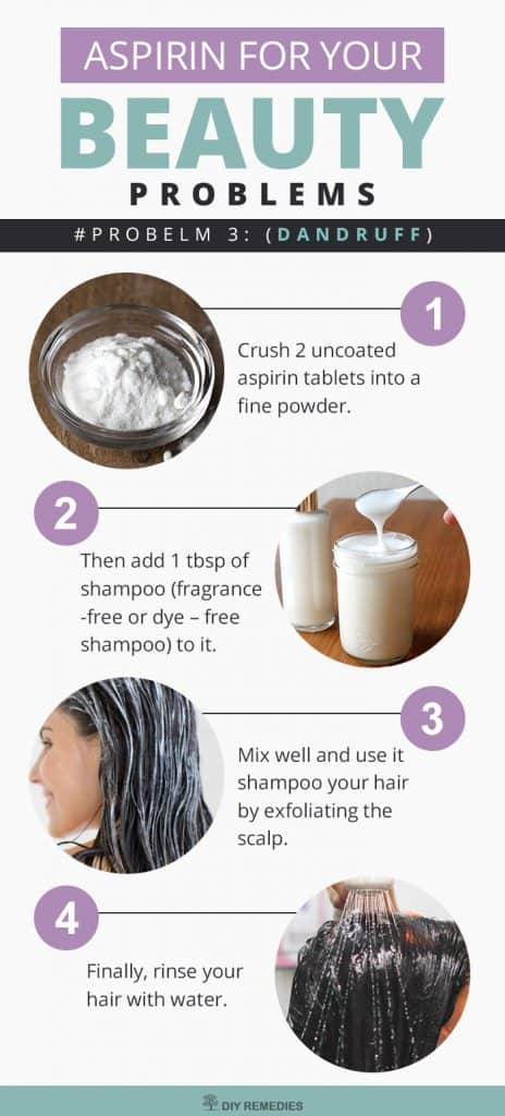 Aspirin for your Dandruff Problems