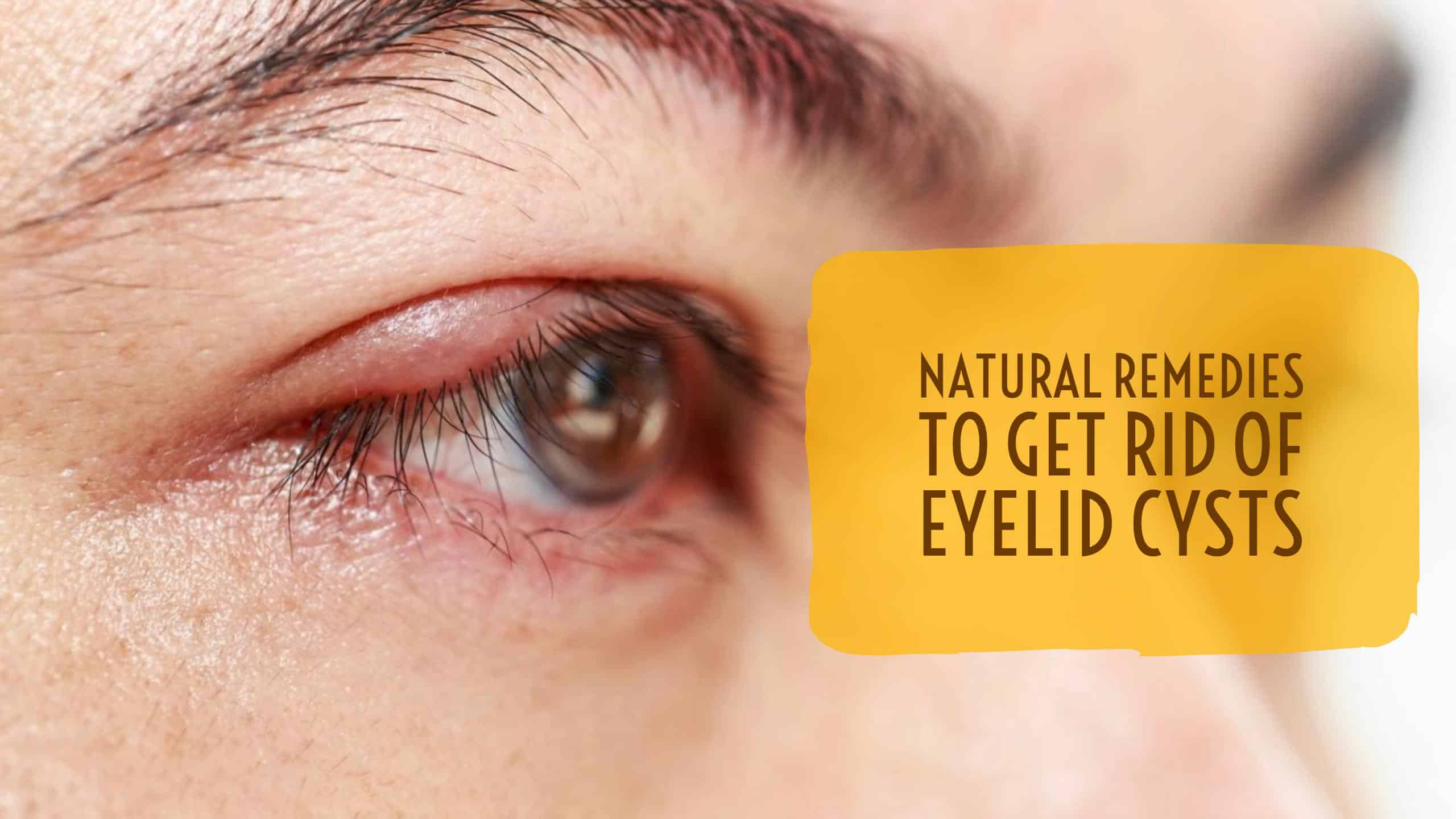 Eye Cyst Treatment Natural