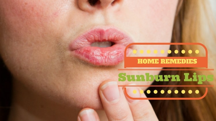 How To Heal Sunburned Lips Naturally