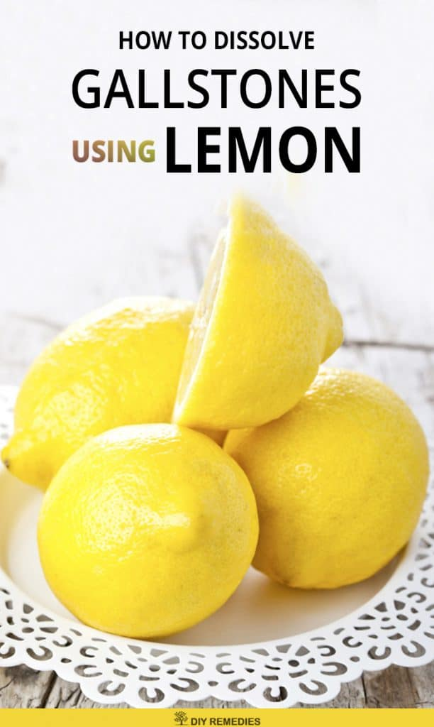 How To Dissolve Gallstones Using Lemon