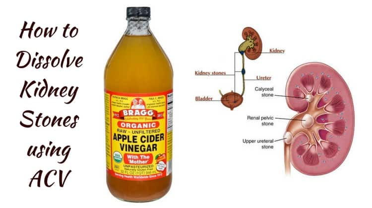 Natural Methods To Get Rid Of Kidney Stones