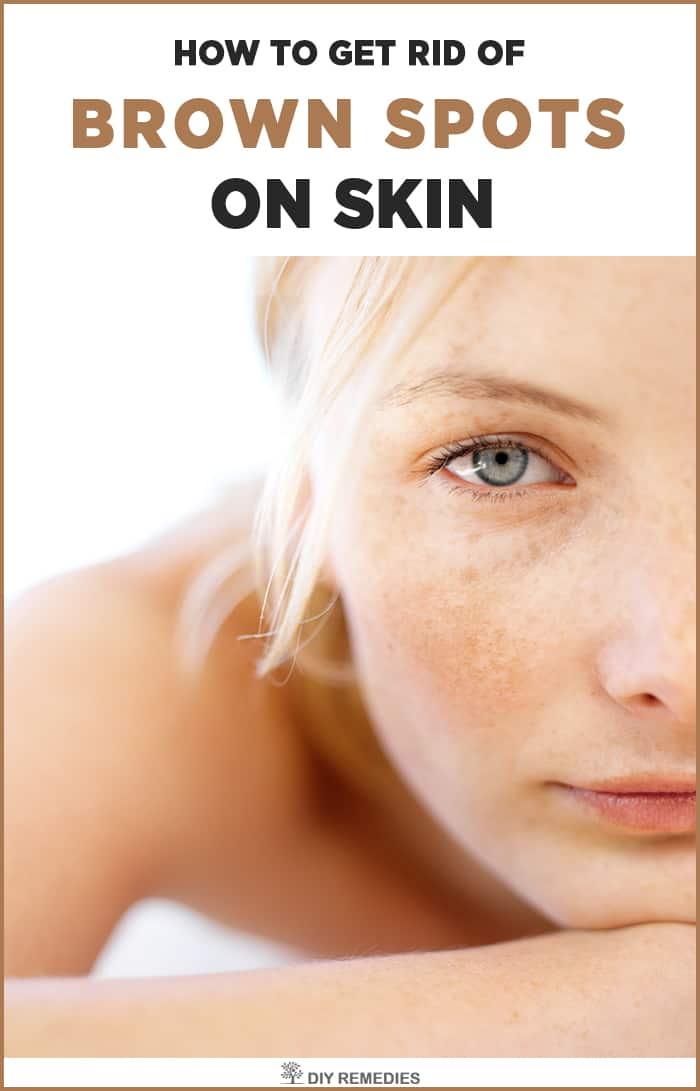 The Trick to Getting Rid of Age Spots - Oprahcom