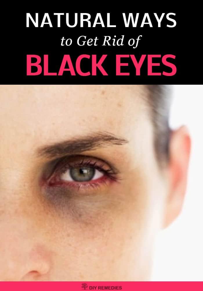 Get Rid of Black Eyes Naturally